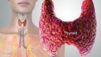 Tiroid Hastalıkları ve Doğal Tedavi Yolları
