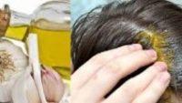 Zeytinyağı Saç Dökülmesini Tedavi Edebilir mi?