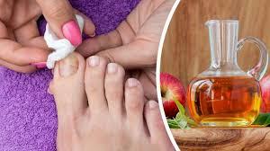 ayak tırnağı mantarı ilacı