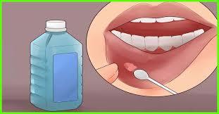 ağız yarası nasıl iyileşir