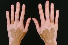 vitiligo bitkisel çözüm