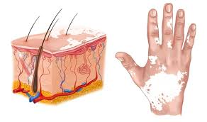 vitiligo hastalığı doğal tedavi