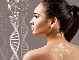 vitiligoya iyi gelen besinler